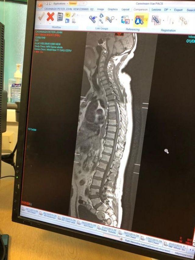 Çektirdiği röntgene bakınca gülme krizine girdi