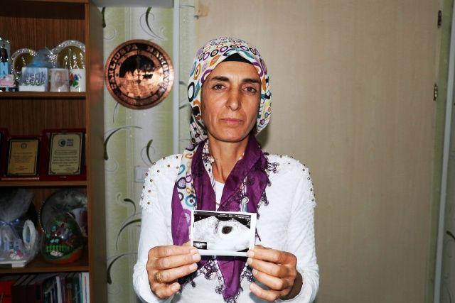 Şehir şehir dolaştı çare bulamadı! Diyarbakır'a gelince hayatı değişti...