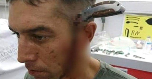 Başına bıçak saplanınca soluğu hastanede aldı... Ne söylediğini duyan şok geçirdi!