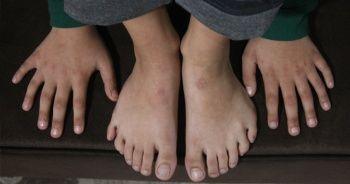 Adana'da 24 parmaklı çocuğun ayakkabı çilesi