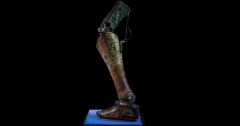 Mayına basan bacaklar sergisi