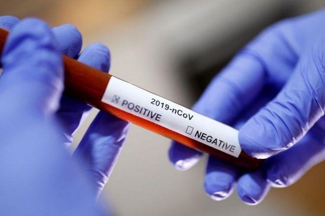 Koronavirüs için alınması gereken  13 önlem