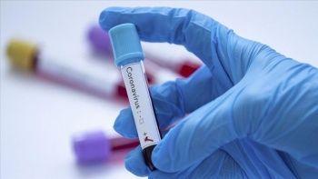 Tüm dünyayı ilgilendiriyor! Koronavirüsü aşısı için DSÖ tarih verdi