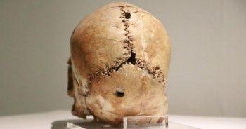 Dünyadaki ilk beyin ameliyatının yapıldığı yer: Aşıklı Höyük