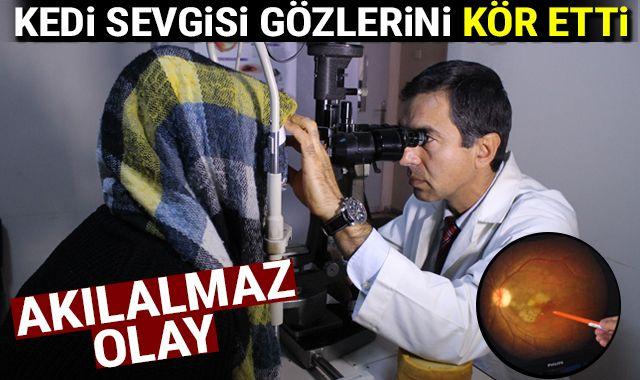 İzmir'de akılalmaz olay: Kediden bulaşan parazit gözlerini kör etti