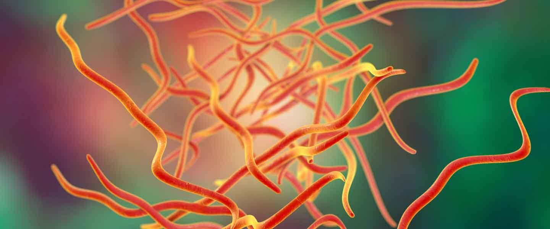 Kancalı Kurt Enfeksiyonu, Bağırsak Kurdu Nasıl Düşürülür?