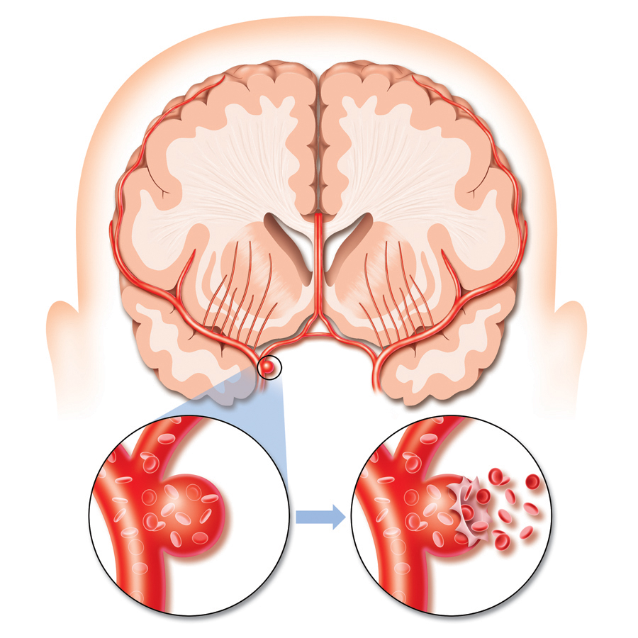 Beyin kanaması nedenleri nelerdir?