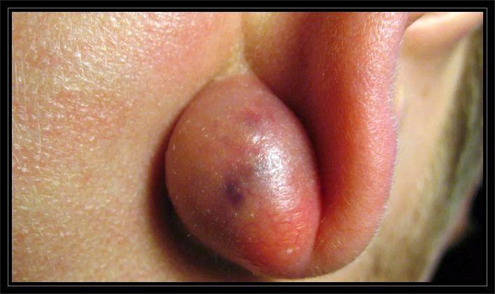 Kist kaç cm tehlikelidir, Kist ne zaman tedavi edilmelidir, Kistler neden oluşur?