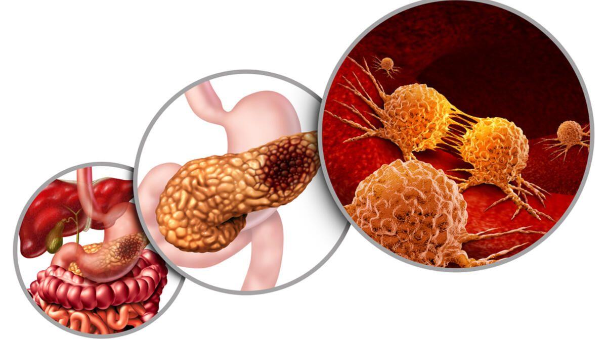 Vücut Mutasyon Virüse Nasıl Tepki Verir?
