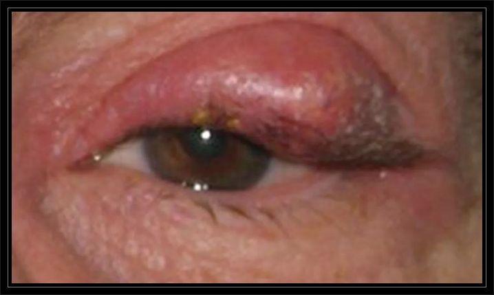 Kist kaç cm tehlikelidir, Kist çeşitleri ve ne zaman tedavi edilmelidir, Kistler neden oluşur?