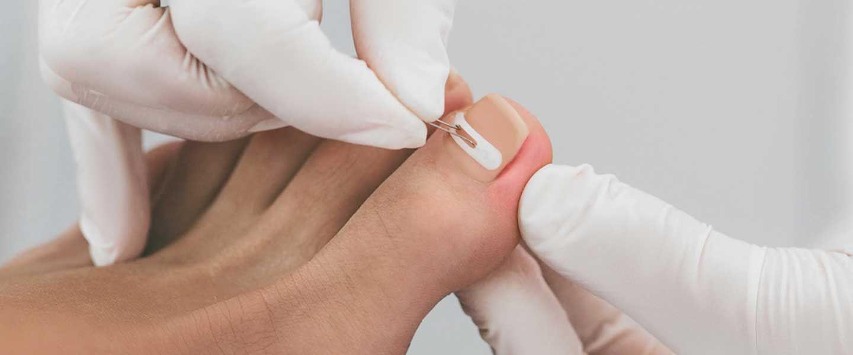 tırnak batması tedavileri