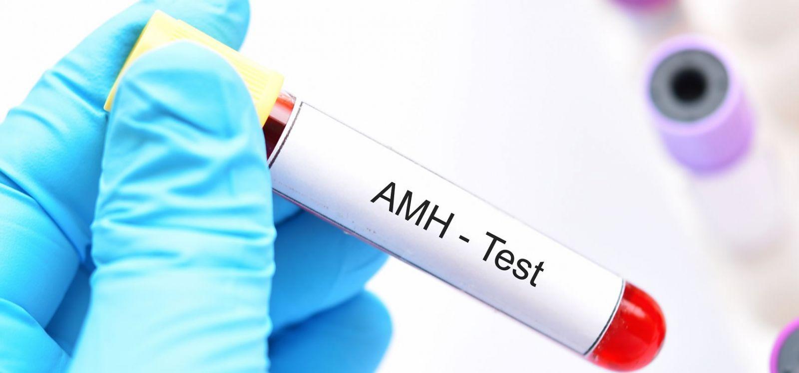 Anti - Müllerian Hormon Aralığı Ne Demek? / Yumurta Rezervi Ne Demek? / AMH Değeri Ne Demek? / FSH Testi Ne Demek?
