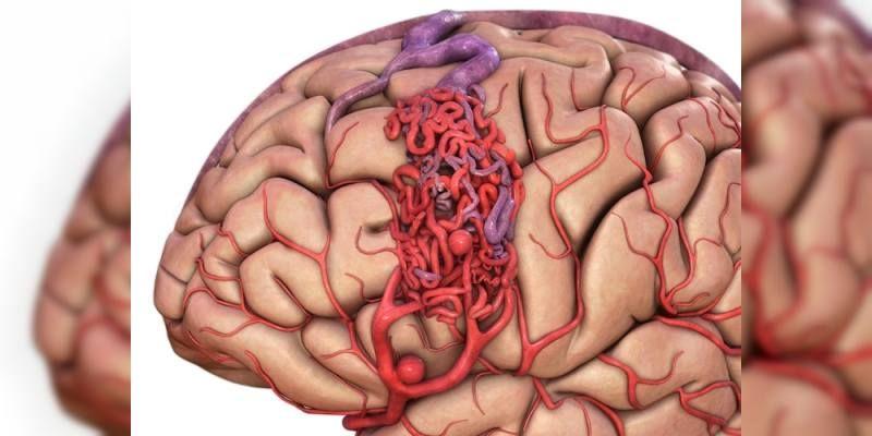 Beyin Kanaması Tanı Yöntemleri