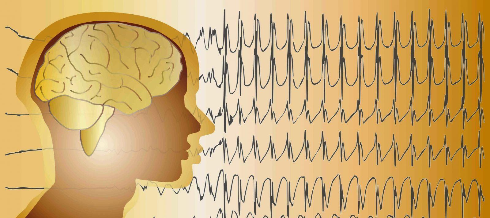 Lennox-Gastaut Sendromu (LGS) Nedir