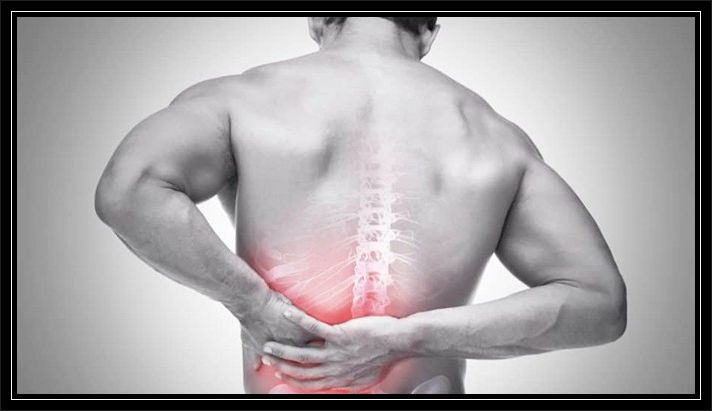 Bel Düzleşmesi Boyun Düzleşmesi, Boyun Düzleşmesi Belirtileri ve Tedavisi Nasıl Yapılır?