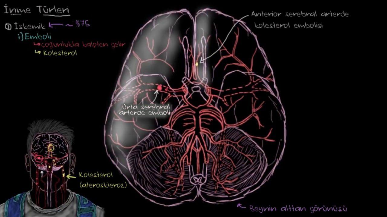 Beyin İskemisi Nedir? Beyinde Kronik İskemik Nedir?