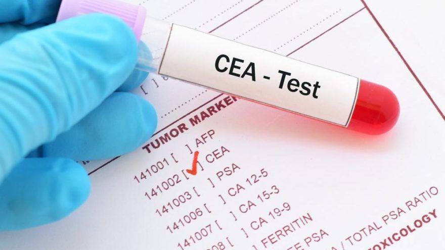 CEA (Karsinoembriyonik Antijen) Nedir? / CEA Yüksekliği ve Değeri Nedir? / CEA Değerini Düşüren Besinler