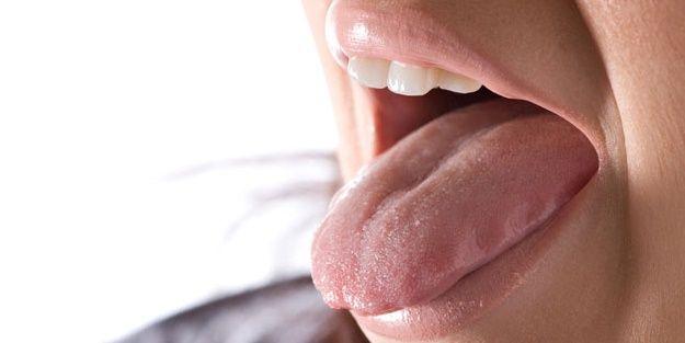 Sjögren Sendromu Nedir?