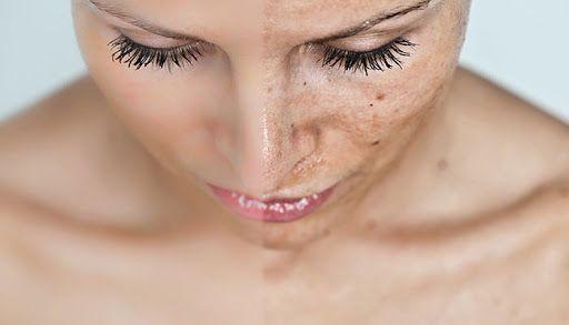 Oksijen terapi nedir? Oksijenli cilt bakımı nasıl yapılır?