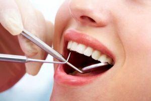 Lazer teknolojisi artık dişlerde