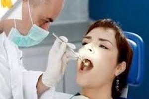 Uzmanlar 'diş aralıkları' ile ilgili uyarıyor