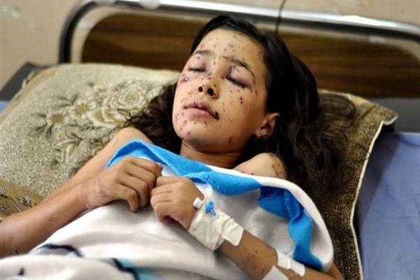 İsrail, bir çocuğun daha dünyasını kararttı!