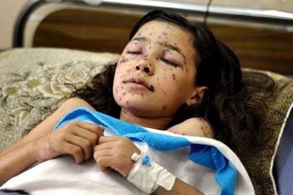 İsrail bir çocuğun daha dünyasını kararttı