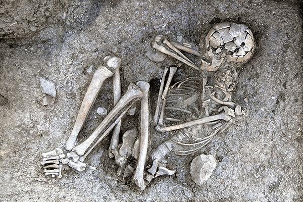En eski kanser hastasının kalıntıları bulundu