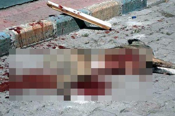 Erzurum'da 6 kişiyi ısıran köpeği bıçakla öldürdüler