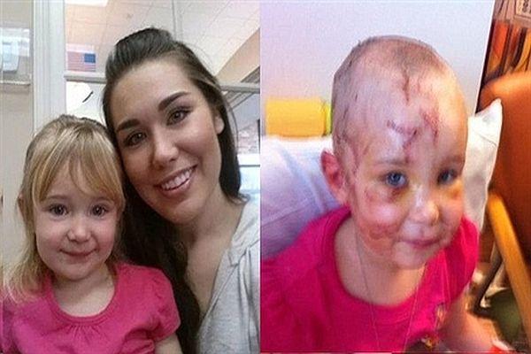 Saldırıya uğrayan kızını bakın nasıl kurtardı