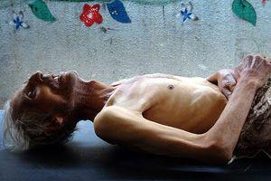 Suriye rejiminin son silahı 'açlık'
