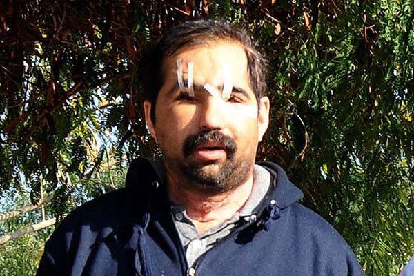 Türkiye'nin 6. yüz nakli yapılan Üslün hayatını kaybetti