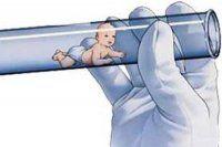 Tüp bebek tedavisinde yönteme dikkat