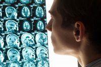 Beyin ölümü tanısını yanıltabiliyor
