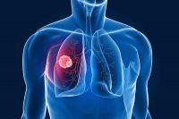 Akciğer kanseri yılda 1,6 milyon kişiyi vuruyor