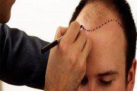 Yanlış saç ekimine uzmanlardan uyarı