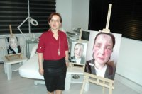 Sahte doktor kurbanı kadının yüzünde şaşırtan değişim