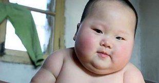 Obezite tedavi edilmezse yaşamı tehdit edebilir