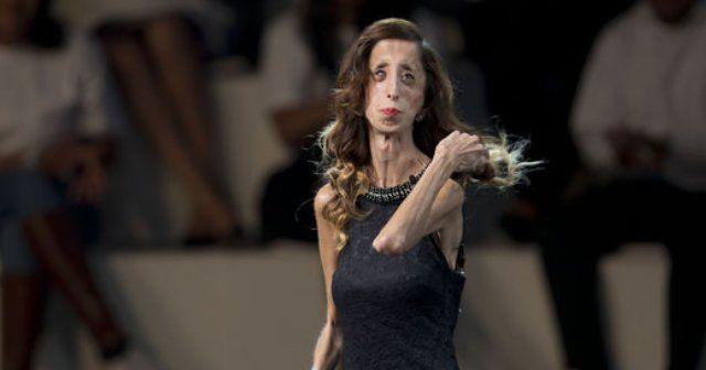 Velasquez artık en çirkin değil en cesur kadın