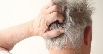 Saç derisinde kaşıntı neden olur, nasıl geçer?