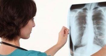 Verem hastalığının 8 belirtisine dikkat! (1-7 Ocak Verem Savaş Haftası)