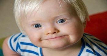 21 Mart Dünya Down Sendromu Günü | Down Sendromu Nedir?