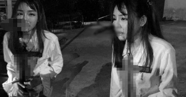 Kapkaççı kendisine direnen genç kadını yüzünden bıçakladı