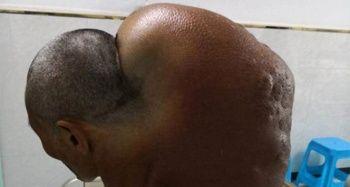 64 yaşındaki adamın boynundan çıkardılar