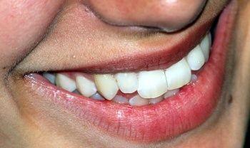 Diş beyazlatma yöntemleri evde nasıl diş beyazlatılır