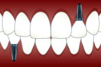 Implant diş uygulaması diş implantı nedir nasıl uygulanır