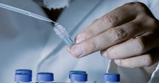 Hormon testi nedir nasıl yapılır, normal değerleri nedir? Hormon testi  tahlilleri aç karnına mı yapılır?