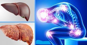 Karaciğer yağlanması belirtileri ve Karaciğer Yağlanması sebepleri
