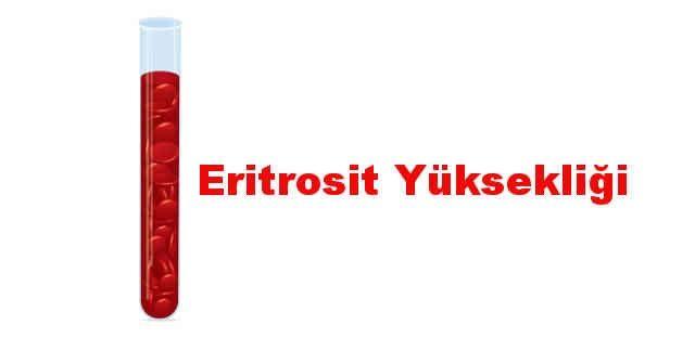 Eritrosit yüksekliği neden olur? Nasıl düşer