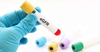 EGFR Nedir Değeri Kaç Olmalı EGFR Testi Normal Değerleri